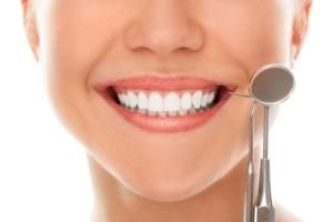 Clínica Reyes de Navarra - Blog - Carillas dentales - Sonrisa con carillas dentales