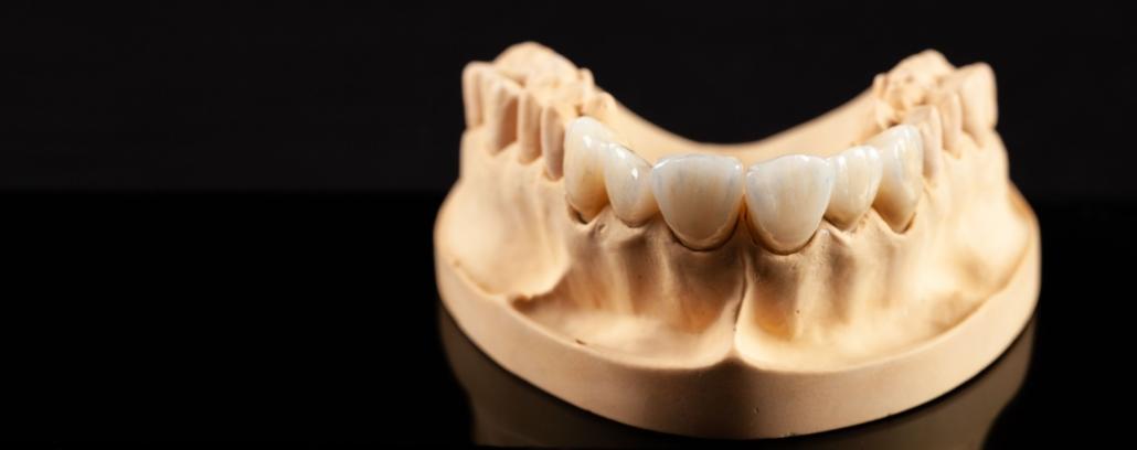 Clínica Reyes de Navarra - Blog - Carillas dentales - Molde carillas dentales
